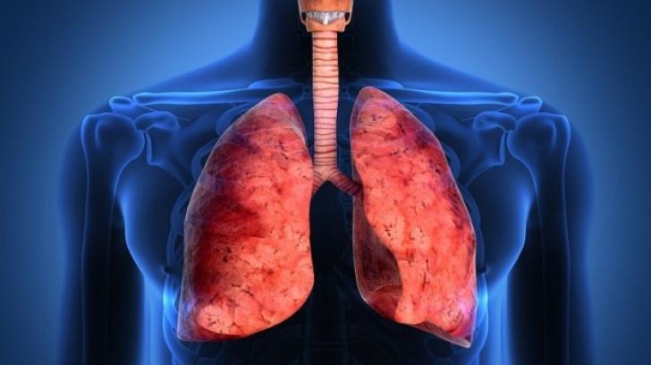 Pacienții români vor putea merge în Franța pentru transplant pulmonar