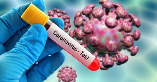 Încă o persoană a murit în Italia din cauza coronavirusului